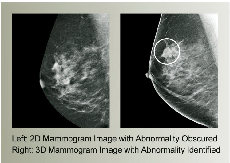 2d mammagram vs 3 d