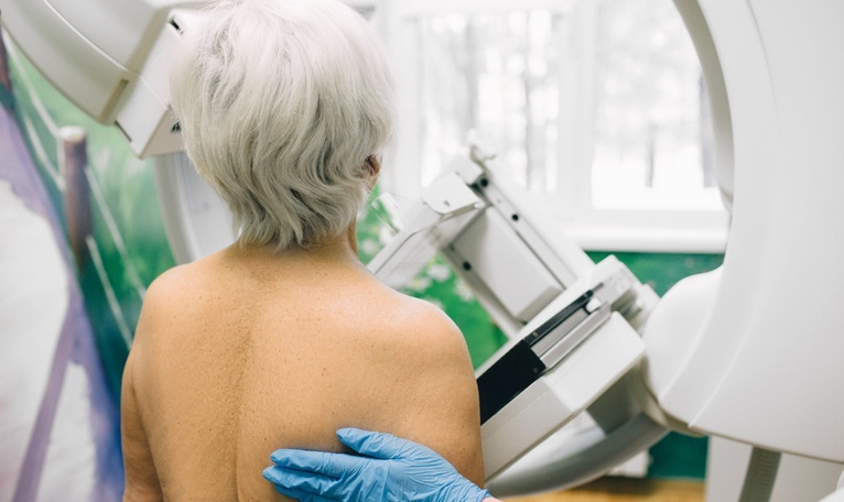 Breast Density Linked to Increased Risk of Invasive Breast Cancer in Women 65+